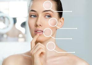 Hilos tensores en alcobendas para rejuvenecimiento facial