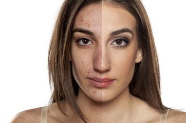 Peeling médico químico en tu clínica facial de alcobendas y san sebastián de los reyes