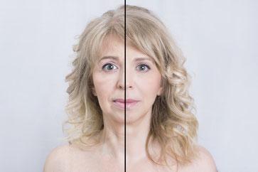 Tratamiento facial prp en clinica medico estetica alcobendas
